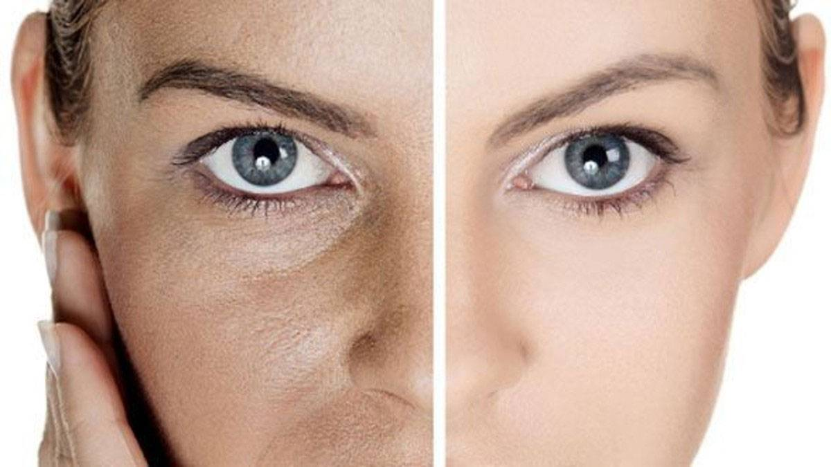 وصفات لتوحيد لون البشرة ناجعة وفعالة