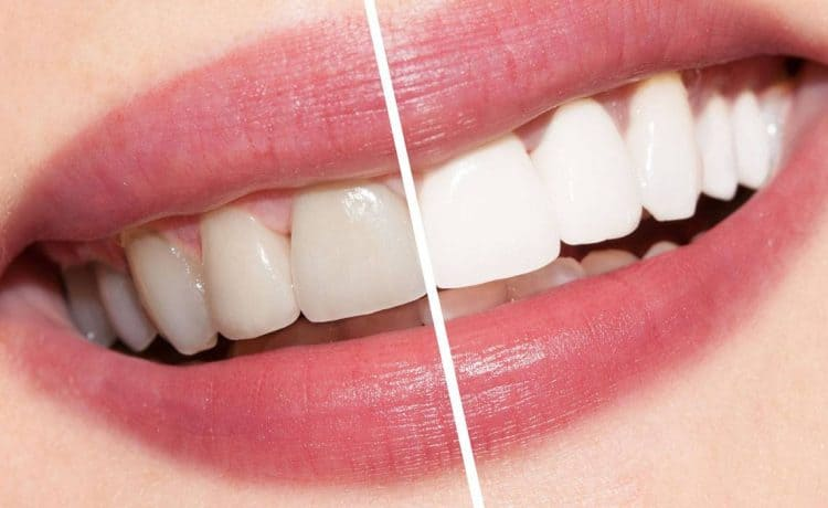 أفضل الوصفات لتبييض الأسنان