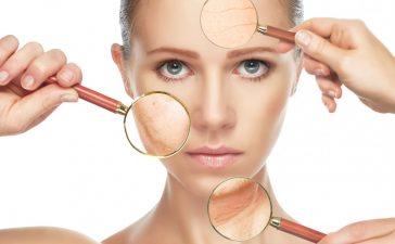 قشرة الوجه وجفافها