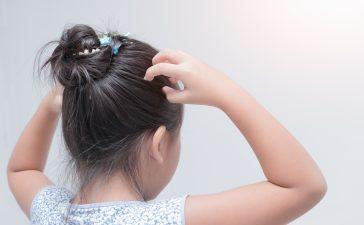 علاج القمل لدى الأطفال