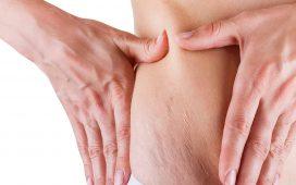 علاجات فعالة للوقاية من تمددات الحمل والتخفيف منها