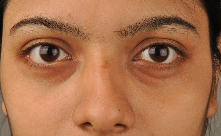 علاج انتفاخ العين